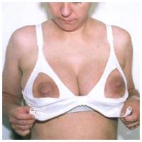 "RE: A new thread - ""Beautiful Big Pregnancy Enlarged Areolas""  - 197975"