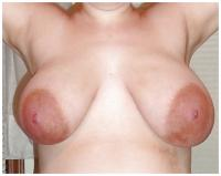 "RE: A new thread - ""Beautiful Big Pregnancy Enlarged Areolas""  - 197981"