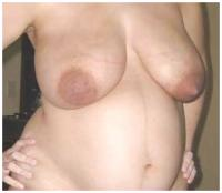 "RE: A new thread - ""Beautiful Big Pregnancy Enlarged Areolas""  - 198256"