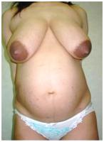 "RE: A new thread - ""Beautiful Big Pregnancy Enlarged Areolas""  - 198989"
