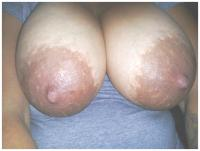 "RE: A new thread - ""Beautiful Big Pregnancy Enlarged Areolas""  - 205846"
